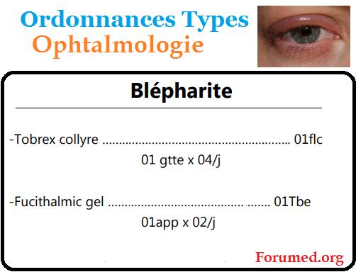Blépharite cours d'ophtalmologie