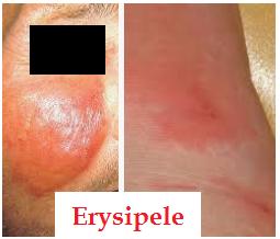 Erysipele photos