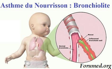 BRONCHIOLITE AIGUE Bronchopneumopathie aiguë dyspnéisante Dyspnée asthmatiforme