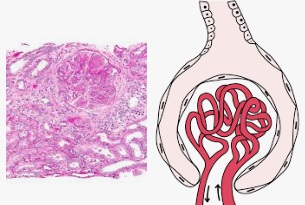 Glomerulonephrite aigue