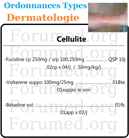 Cellulite infectieuse Ordonnance Type