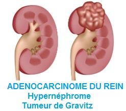 ADENOCARCINOME DU REIN =  Hypernéphrome = Tumeur de Gravitz
