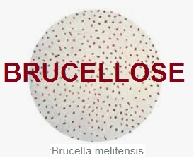 BRUCELLOSE =  Fièvre de Malte = Mélitococcie
