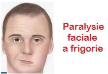 Paralysie faciale a frigore idiopathique = Maladie de Bell