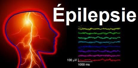 CRISES COMITIALES épilepsies