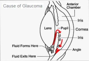 LES GLAUCOMES A ANGLE OUVERT A ANGLE FERME GFA