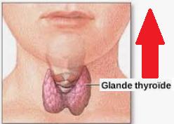 Hyperthyroïdie Hyper-thyroidie thyrotoxicose Maladie de Basedow