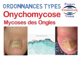 ONYCHOMYCOSES