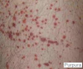PTI purpura thrombopénique idiopathique