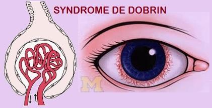 SYNDROME DE DOBRIN