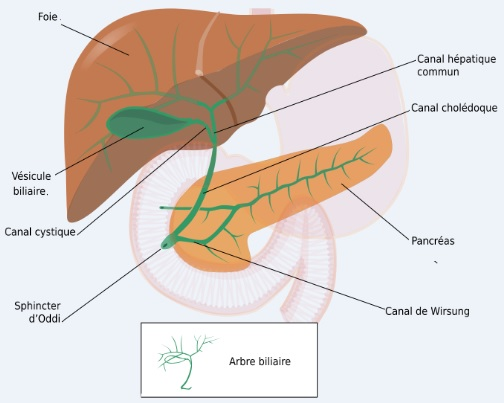 voies biliaires hepatique Cours de  GASTRO-ENTÉROLOGIE MALADIE DE CAROLI