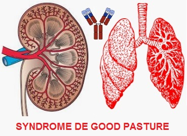 SYNDROME DE GOOD PASTURE