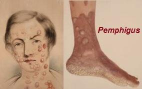 Pemphigus vrais VULGAIRE PEMPHIGOIDE BULLEUSE