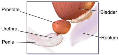 PROSTATITE anatomie de la prostate
