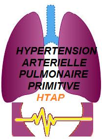 HYPERTENSION ARTERIELLE PULMONAIRE PRIMITIVE HTAP