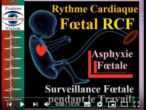 Prévenir une Asphyxie néonatale par Surveillance du Rythme cardiaque fœtal RCF