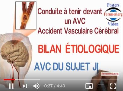 Conduite a tenir devant un accident vasculaire cérébrale avc ischemique