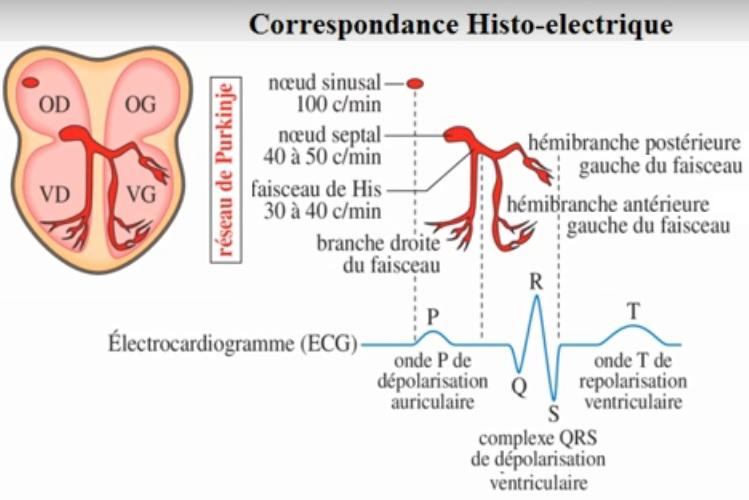 ECG pathologique: Troubles du rythme Cardiaque