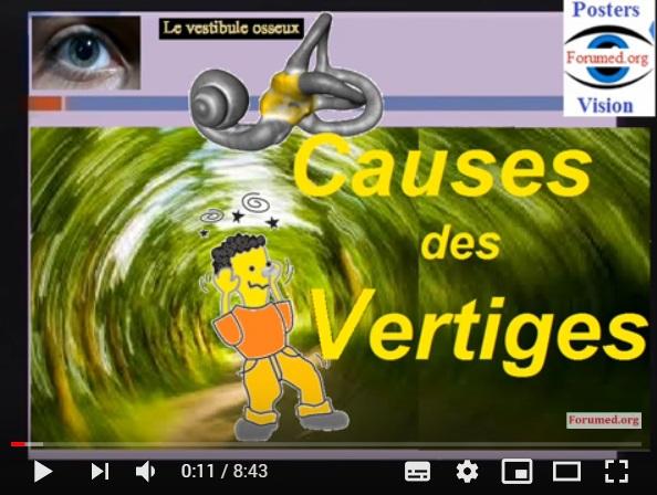 Vidéo sur Les Causes du Vertige