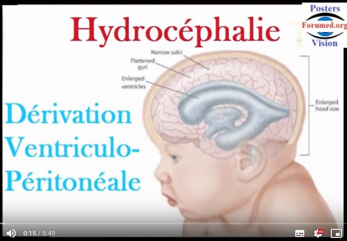Hydrocephalie derivation valve VENTRICULO PERITONEAL du liquide cérébro-spinal SHUNT
