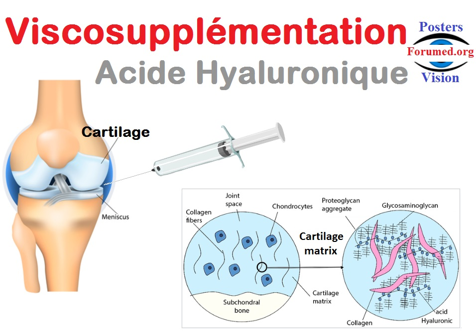 ViscoSupplémentation: injection intra articulaire d'acide hyaluronique