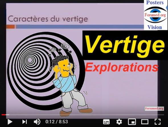 Tout savoir sur les vertiges: Mécanisme et Exploration