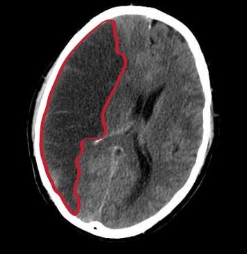 Conduite à tenir devant un  Post-infarctus cérébral