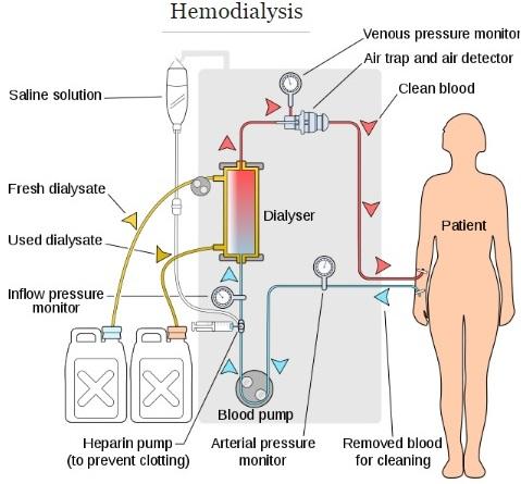 Les 3 techniques d'épuration extra-rénale  hémodialyse