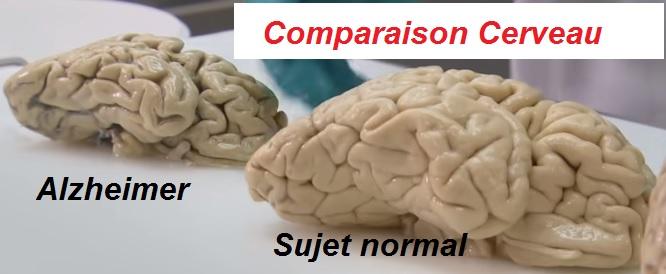 Alzheimer comparaison avec le Cerveau Normal