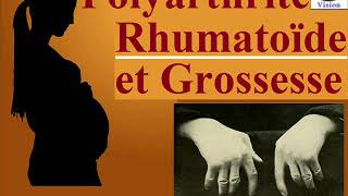 Polyarthrite Rhumatoïde: Fertilité et Grossesse