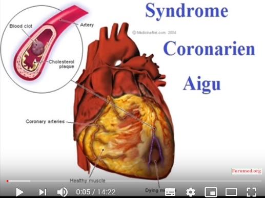 Syndrome coronarien Conduite à Tenir devant une crise cardiaque