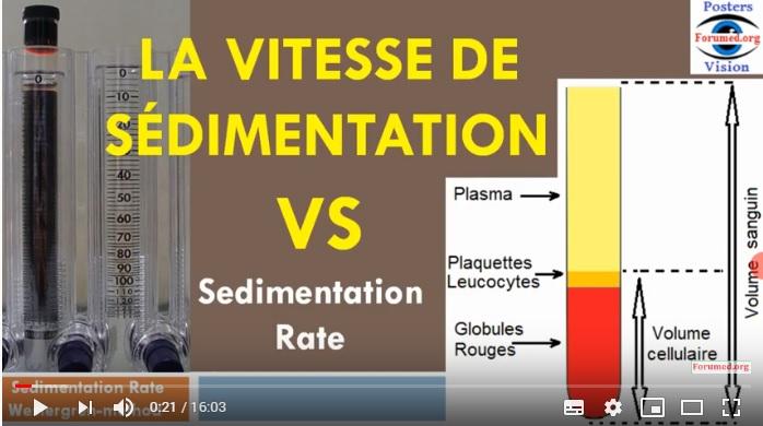 Methode Mesure de la vitesse de sedimentation rate VS ESR