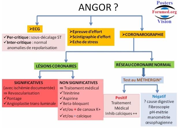 Orientation diagnostique devant ANGINE DE POITRINE ANGOR
