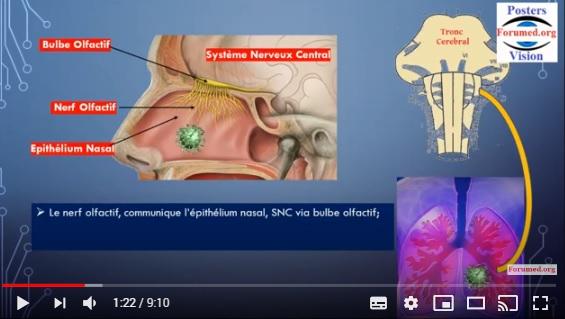 Anosmie réversible le SARS-CoV-2 n'infecterait pas les nerfs olfactifs