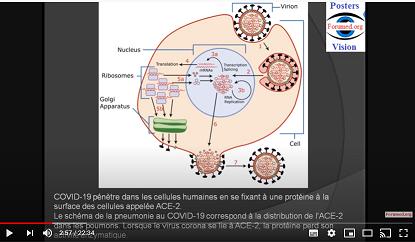 COVID-19: succès précoce du vaccin