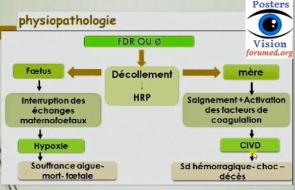 Hématome rétro-placentaire HRP Hémorragie génitale du troisième trimestre de grossesse posters vision