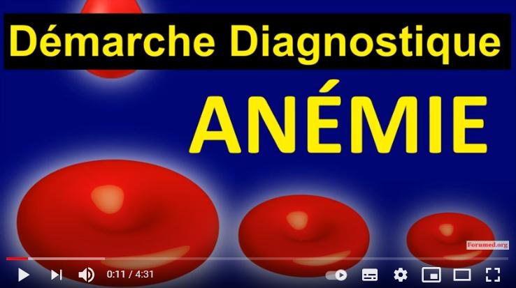 Diagnostique des Anémies? Causes Megaloblastique par Carence Arégénérative Hémolytique Auto immune