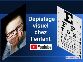 TROUBLES VISUELS CHEZ L'ENFANT Recommandations AFSOP 2019