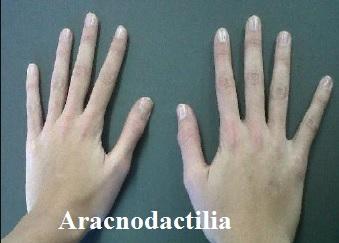 MALADIE DE MARFAN Dolichosténomélie  Arachnodactylie