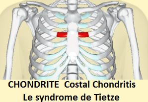 CHONDRITE Le syndrome de Tietze Costal Chondritis