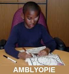 AMBLYOPIE
