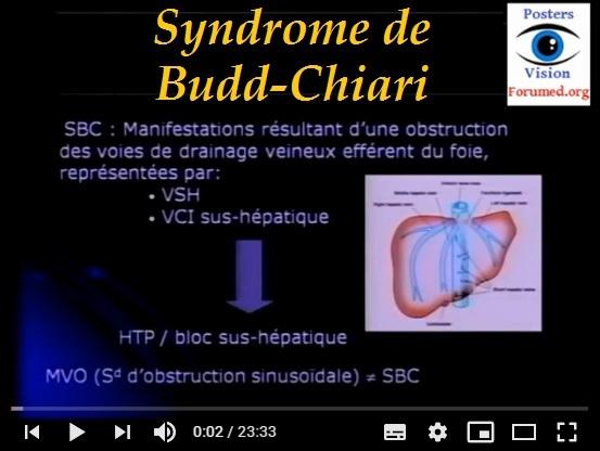 SYNDROME  DE BUDD  CHIARI