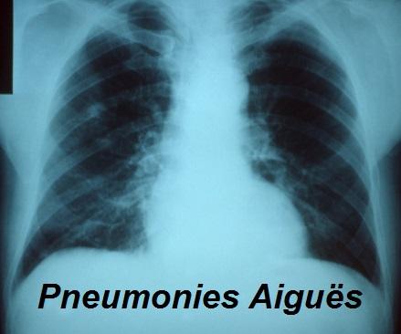 pneumonies aiguës