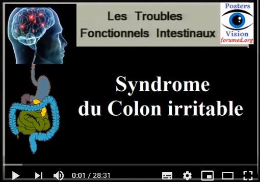 Syndrome du côlon irritable ou colon nerveux Symptômes définition et Traitement