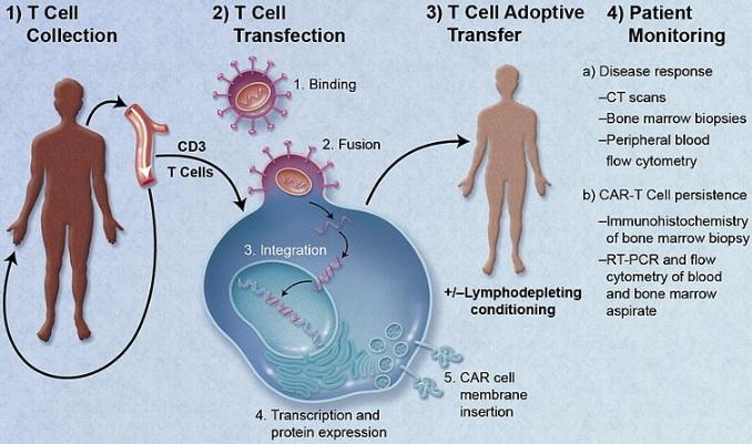 Une Nouvelle Thérapie cellulaire CAR T contre tout les cancers
