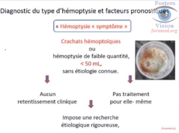 hémoptysie conduite à tenir,