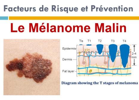 Mélanome malin de la peau et sous les ongles: Les Facteurs de risque et prévention